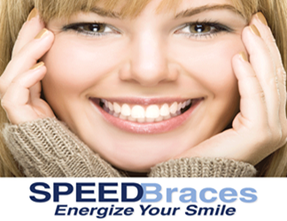 Orthodontics Using the Speed System
